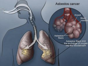 causes-of-asbestos-lung-cancer